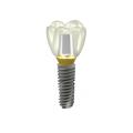 TS III SA Implant system